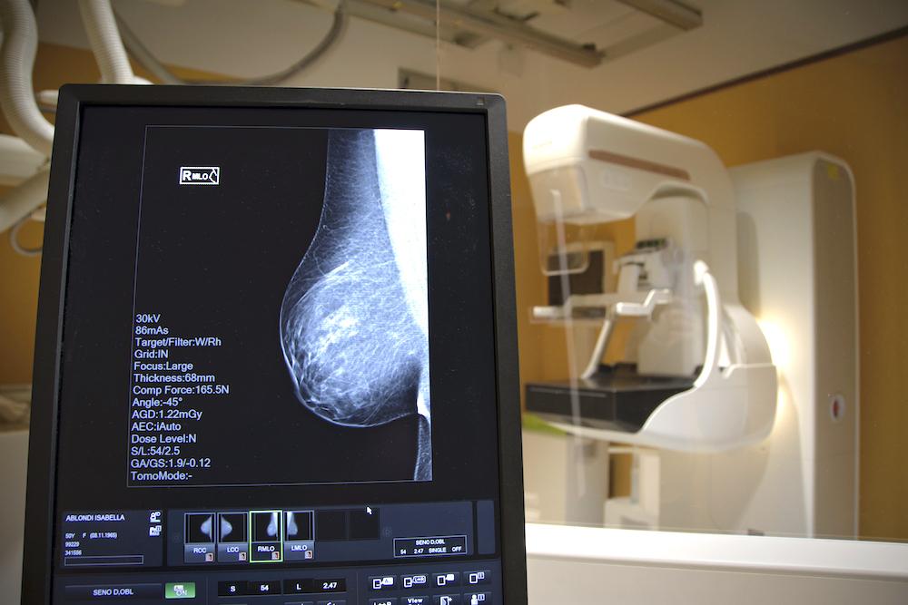 prevenzione senologica