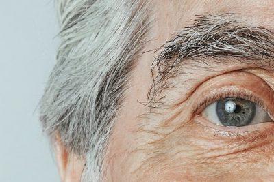 Glaucoma: cos'è, prevenzione, sintomi e terapia
