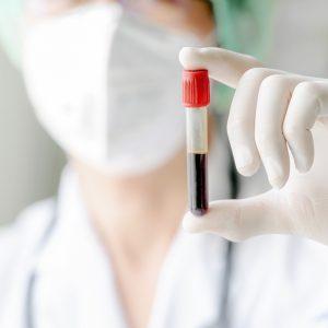 nuovo test immunologico Elecsys